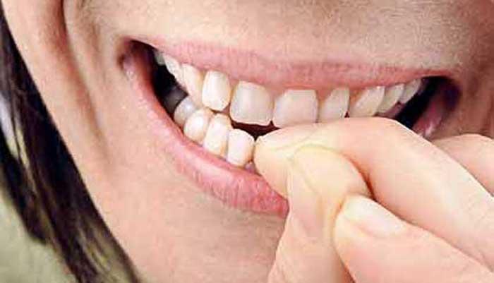 Mangiare-unghie